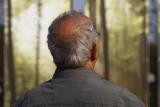 Ученые установили связь между облысением и опасных заболеваний