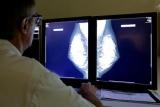 Найдено лекарство против бессмертных раковых клеток
